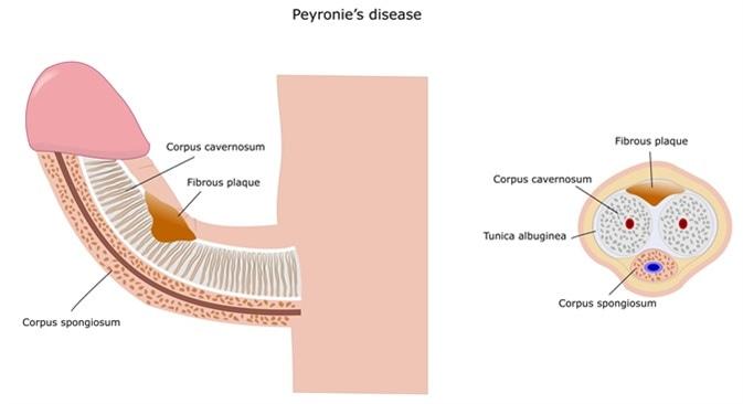 Peyronie-Erkrankung