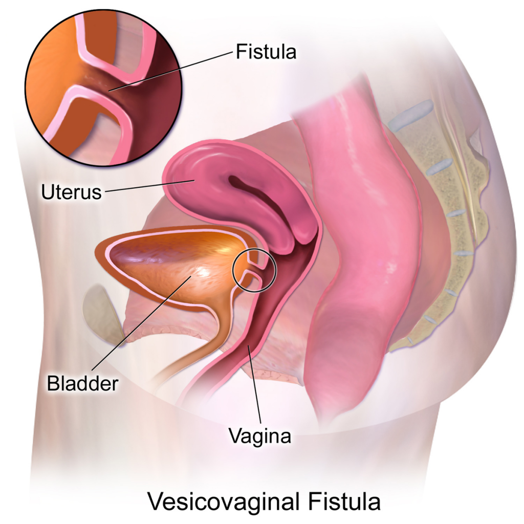 vaginal-fistula